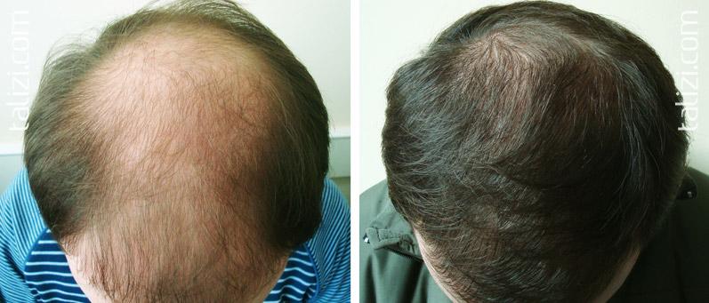 Выпадение волос какие лечение