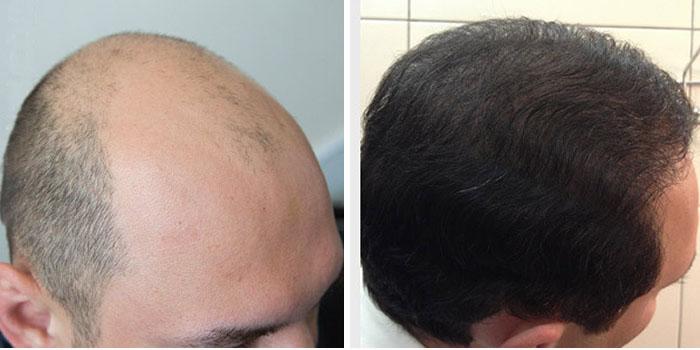 Пересадка волос на голову москва