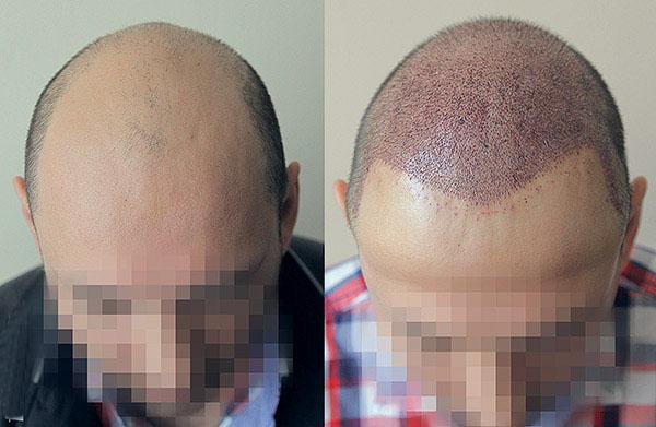 Пересадка волос стоимость операции